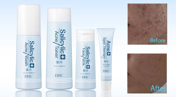 Salicylic Acne Series
